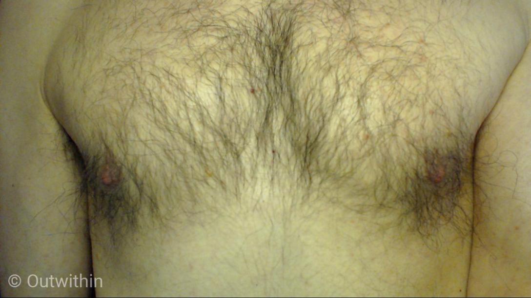 hairy nips